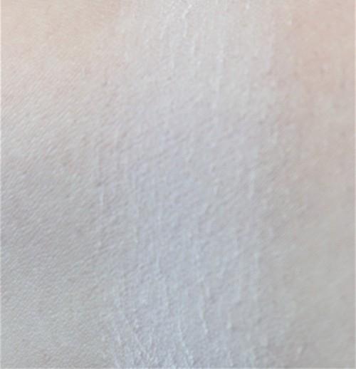 pic-12
